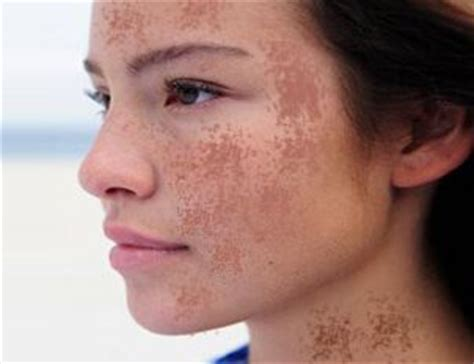 Remedies for Chloasma - Homeopathy Plus