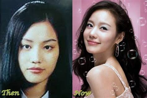 Best 5 Korean Plastic Surgery Before And After Photos
