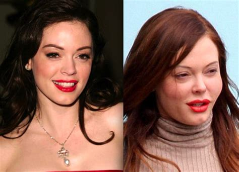 Rose Mcgowan Plastic Surgery Gone Wrong Before and After