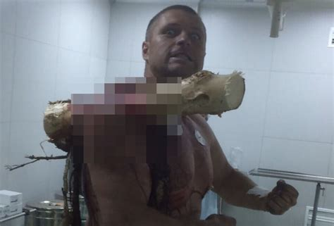 WTF!: Man Impaled By Tree Through Shoulder Poses For