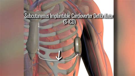New S-ICD defibrillator a safety net for cardiac patients